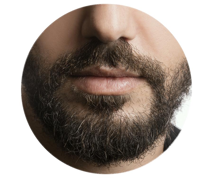 greffe de barbe paris